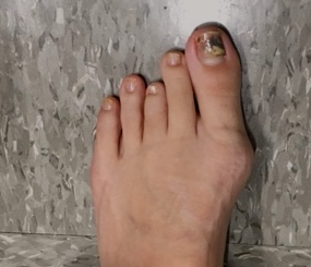 short-long toe before-1.jpg